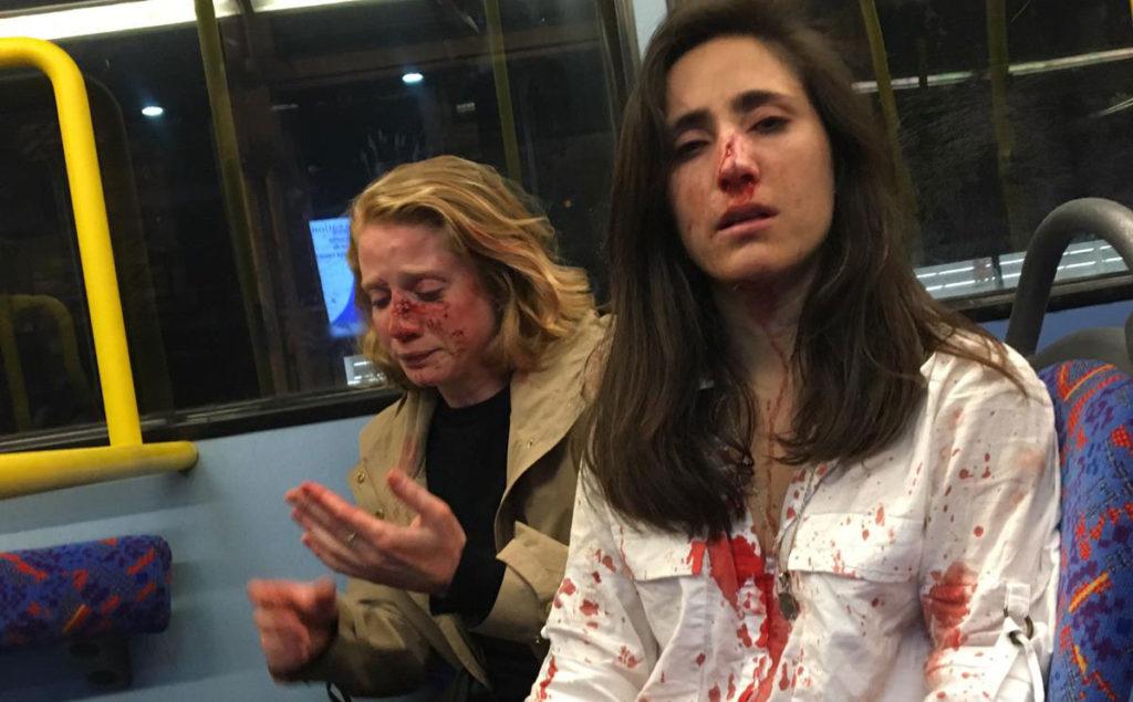 Photo of Megszületett az első ítélet a londoni leszbikus pár támadásában